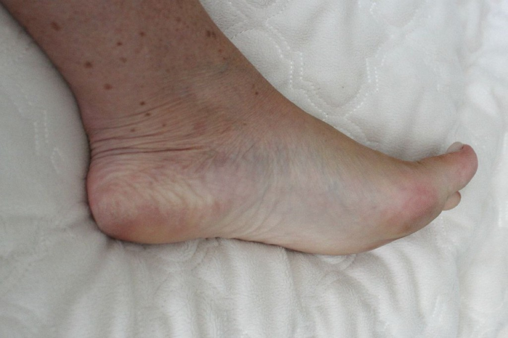 Baby Foot Before The OP Life